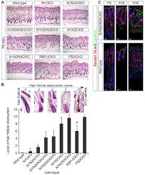 Stem Cells Hair Loss Notch Signaling In Bulge Stem Cells Is Not Required For Selection