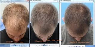 prp injection for hair loss hair transplantation