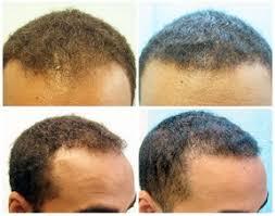 the thin hair african american african american fue hair transplant dermhair clinic 1 310 318 1500