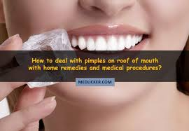 Causes Of Blind Pimples Pimples On Roof Of Mouth Causes Symptoms And Treatment Options