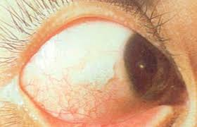 xerophthalmia symptoms causes stages treatment pictures