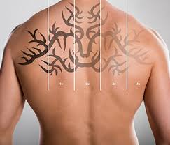 laser tattoo removal houston katy