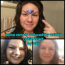 hair to hide forehead wrinkles how to overnight get rid of wrinkle between eyes youtube