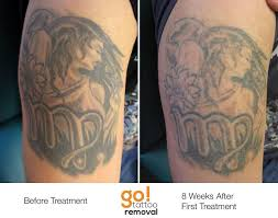 tattoo removal frequently asked questions laser tattoo removal progress photos allentown pa