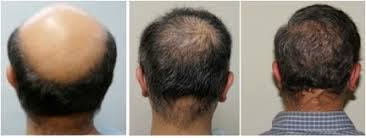best hairtransplant in the world best hair transplant doctor in the world dermhair clinic 1 310
