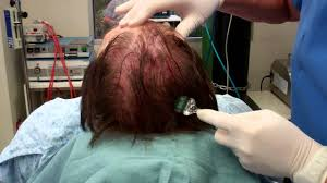 vampire hair regrowth maine laser skin care