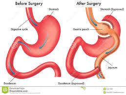 Human Anatomy Diagram Download Anatomy Of The Stomach And Duodenum Stomach And Duodenum Anatomy