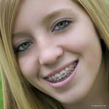 what hair styles suit braces 60 photos of teenagers with braces oral answers