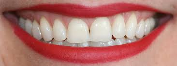 Does Laser Teeth Whitening Work Questions U0026 Answers Tooth Whitening