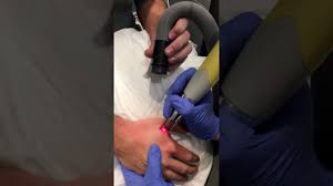fresh start laser clinic nba tattoo removal austin tx youtube