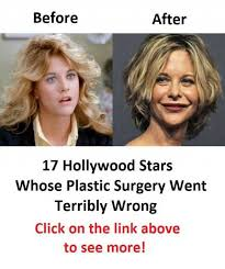 Meme Plastic Surgery - dopl3r com memes before after 17 hollywood stars whose plastic