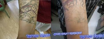 tattoo vanish healing tattoo removal gloss extension salon