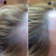 hair style wo comen receding got a receding hairline these tattoos are giving women their