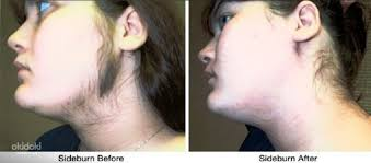 lady neck hair specialised dr me ping gel an herbal permanent hair removal in