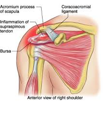 Anatomy Of Shoulder Muscles And Tendons Supraspinatus Tendinitis Morphopedics
