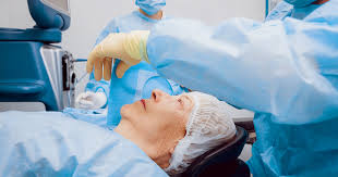 Blindness After Cataract Surgery Cataract Surgery Everything You Need To Know