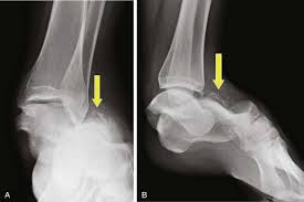Subtalar Joint Fracture Dislocations Of The Foot Musculoskeletal Key