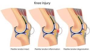 Lateral Patellar Ligament Patellar Tendonitis Jumpers Knee Symptoms Diagnosis U0026 Treatment
