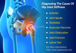 Leg Pain Going Down Stairs by What Can Cause Hip Joint Pain And How Is It Diagnosed