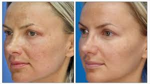 Intense Pulsed Light Treatment For Dark Circles How It Use Duration