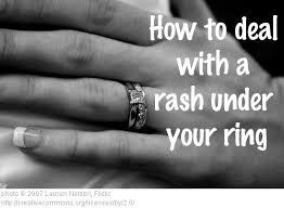 wedding ring dermatitis dr visha the rash the ring