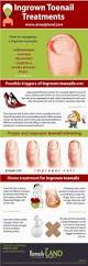 toenail fungus home remedies for better looking nails ingrown toenail or onychocryptosis treatment surgery infection