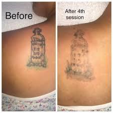 tattoo be gone sf 62 photos u0026 86 reviews tattoo removal 126