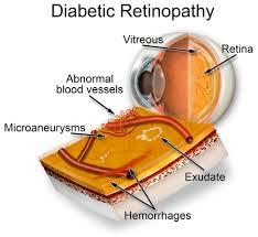 Diabetic Blindness Diabetic Retinopathy Denver The Eye Center Colorado Diabetic Eye