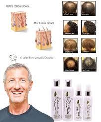 Best Product Hair Loss Vegan Hair Product