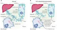 Image result for Haemochromatosis