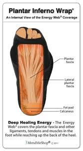 Planters Fasciitis Surgery by Mendmeshop Com Plantar Fasciitis Surgery