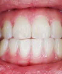 Berapa Pemutih Gigi Whitelight white light pemutih gigi cepat dan praktis 9kescom