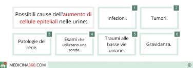 leucociti a tappeto cause aumento cellule epiteliali nelle urine 700x250 jpg