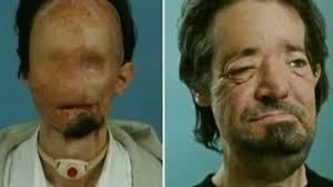 face transplant donor