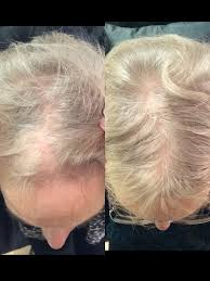 Injection In Scalp For Hair Growth Dr David Jack Aesthetic Doctor Harley Street London