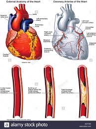 Heart External Anatomy Heart Blockage Stock Photos U0026 Heart Blockage Stock Images Alamy