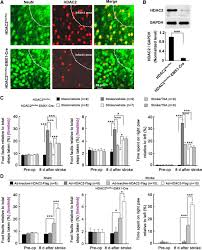 opening a new time window for treatment of stroke by targeting