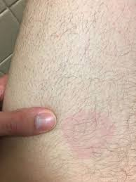 Difference Between Bed Bug Bites And Mosquito Bites Bug Bites Ringworm Allergies Health Conditions Webmd