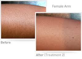 intense pulsed light review is viss hair removal system worth your money hair removal systems