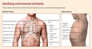 medical surgical cardiovascular disorders assessment brilliant