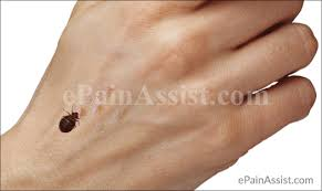 light bed bug infestation bedbug bite treatment prevention ways to get rid of bed bugs