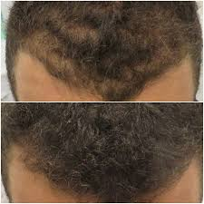 pics of scalp micropigmentation on people with long hair combining micro scalp pigmentation with long hair vinci hair