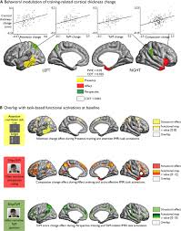 structural plasticity of the social brain differential change