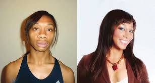 hair transplant for black women gina black spent 40 000 on 22 surgical procedures because she was