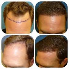 hair transplant costs in the philippines meshkin medical hair transplant surgery 112 photos hair loss
