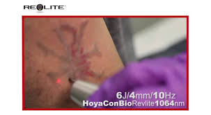 spectra tattoo removal clears away rivals youtube