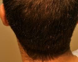 alopecia areata u2013 hair loss dr erikson