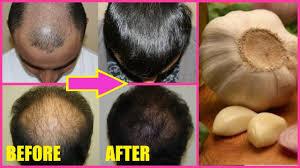 Natural Hair Growth Remedies For Black Hair Hair Regrowth Before And After Using Garlic Garlic Hair Oil
