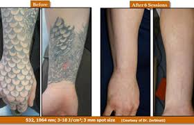 removing tattoos just got faster clarksvillenow com
