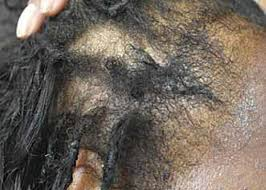 pubic hair disappearing black women s hair the main scalp dermatoses and aesthetic
